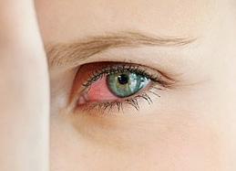 Красные глаза, причины